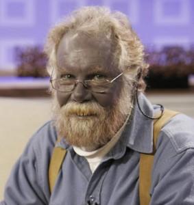 silver blue man-Argyria